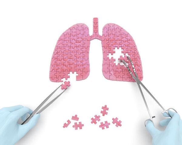 Nature:构建出人类肺部的细胞图谱,为理解和治愈肺部疾病奠定基础