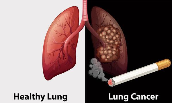 """肺部微小病灶是癌还是瘤?磁导航""""无死角""""定位"""