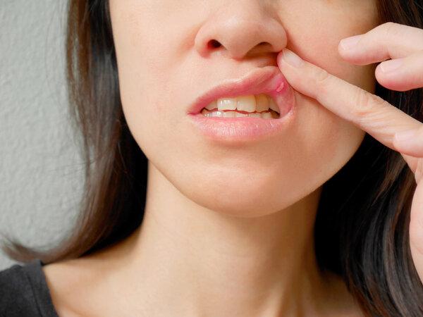 为什么口腔溃疡反复出现?四个因素决定
