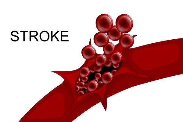 世界卒中日:突发脑卒中,静脉溶栓治疗好还是机械取栓治疗好?