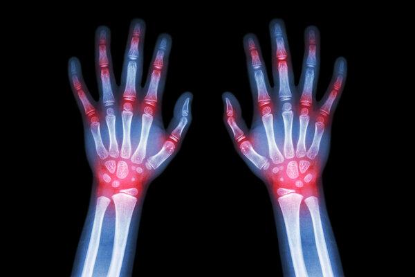 类风湿性关节炎是两种不同疾