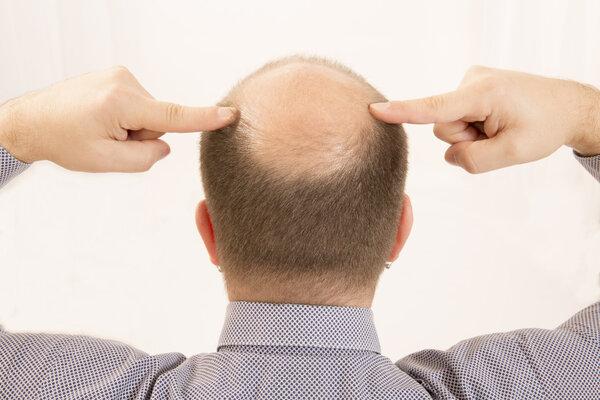 男人的頭發越來越禿怎么辦