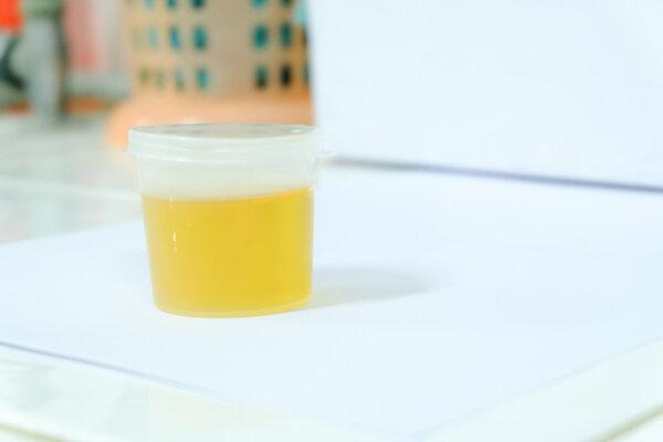 """注意胡椒:尿少尿黄除了是缺水我知无,还可能是身体疾病的""""警钟"""""""