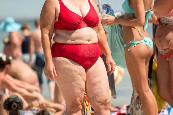 引起肥胖的原因有哪些