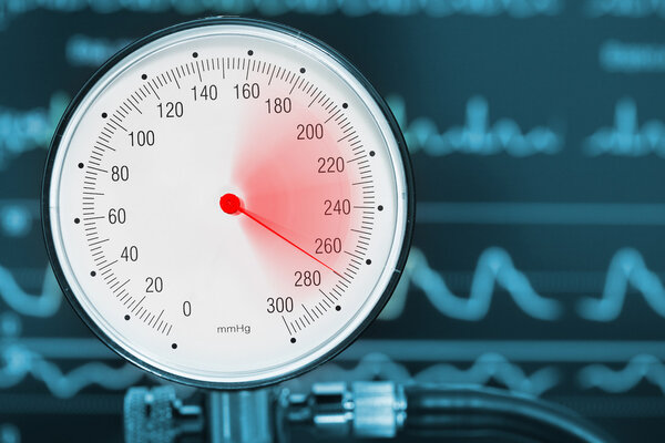 夜间血压高于白天?或会增加患阿
