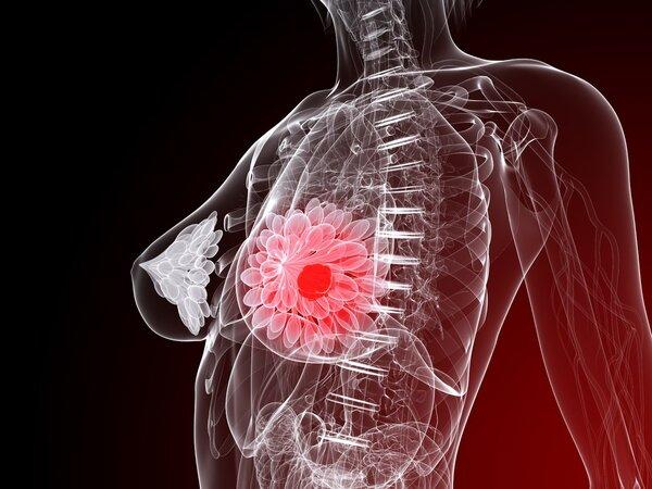 癌症真相与误区56期:3岁女