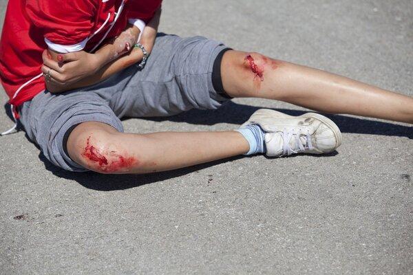 意外!岁半男孩摔倒 木板铁钉插入颅骨