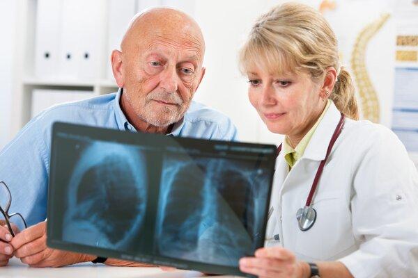 骨质疏松症患者罹患痴呆症的可能性高达30%
