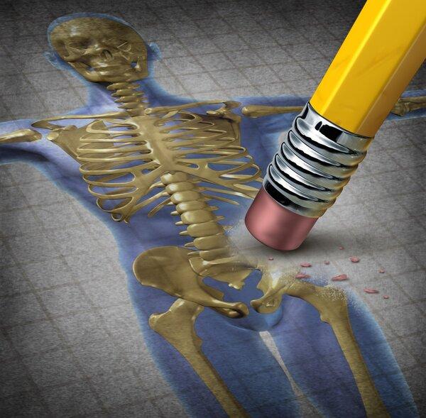60岁以上每两人就一个患骨质疏松