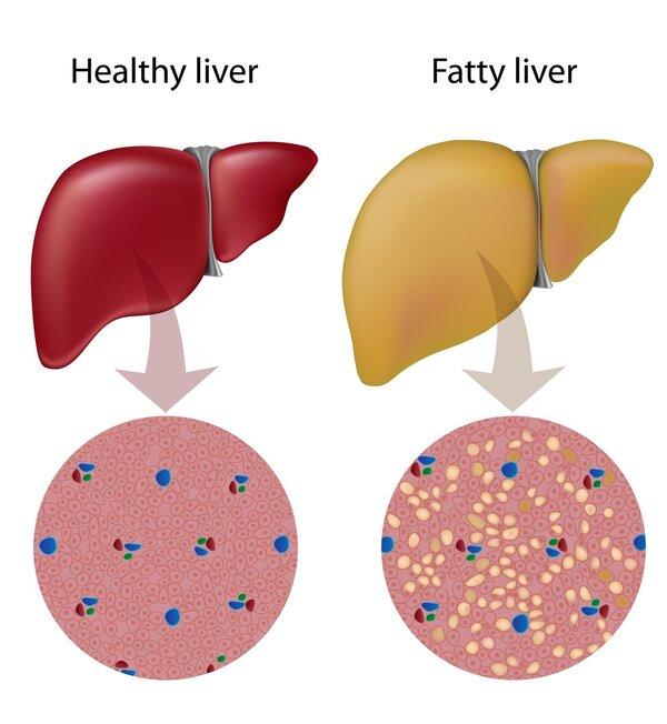 消除脂肪肝的6种食疗方法
