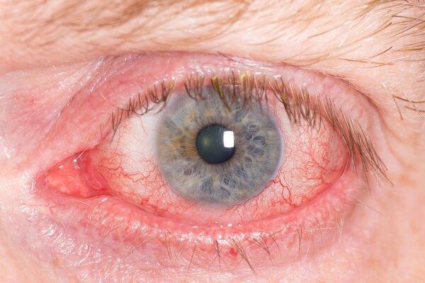 糖尿病还影响视力?婆婆眼疼未引起重视,右眼仅剩光感!