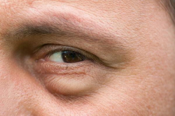 结膜炎能自愈吗?该如何治疗?