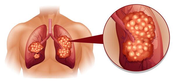李峻岭:经过恰当处理 肺癌化疗副作用可较好控制