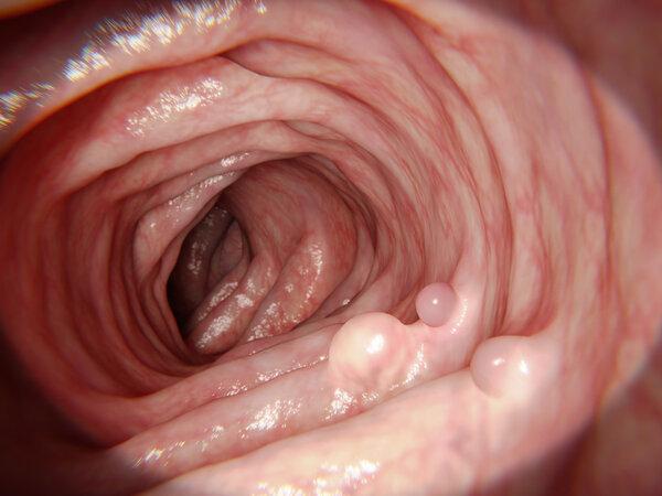 肠息肉在脸上的表现信号及保健