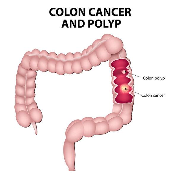 超9成大肠癌源于息肉癌变!出现这3种变化,或是息肉癌变后的表现