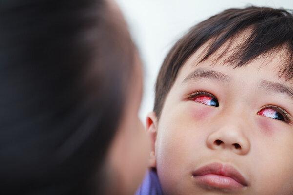 结膜炎是红眼病吗