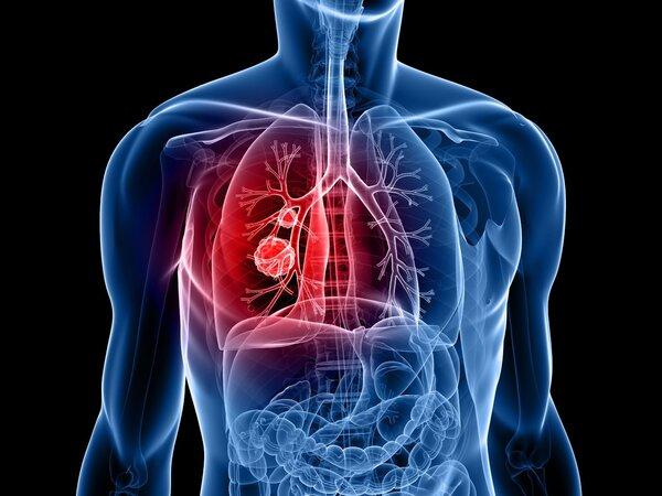 不抽烟为什么也得肺癌?口腔细菌
