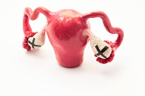性激素紊乱,或是卵巢出问题!卵巢癌的4个