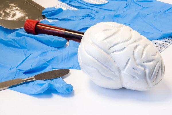 《仁心》第1期:南方医院神经外科―漆松涛