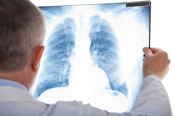 粒淋比上升1个单位,慢阻肺风险增加27%!