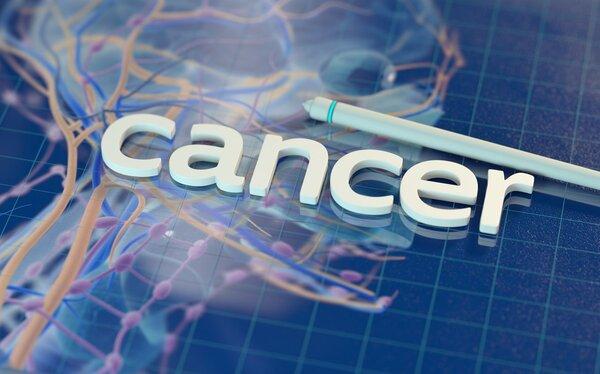 胃癌D2术后辅助化疗优于放化疗;双免疗法一线治疗恶性胸膜间皮瘤拟纳入优先审评|肿瘤情报