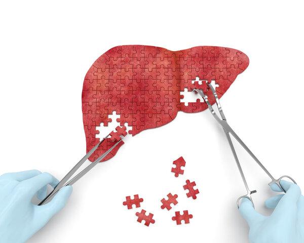 5大指标,13个项目,一文读懂肝功能检查