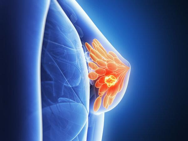 乳房里面硬硬的到底是什么?
