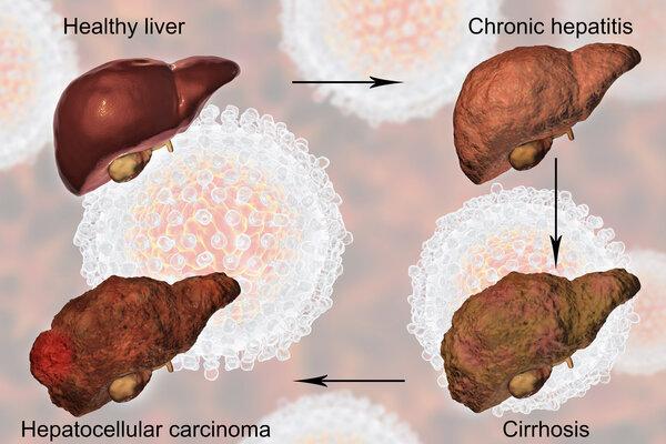 """癌症虽不传染,但这些""""癌症病毒""""会传染!远离它"""