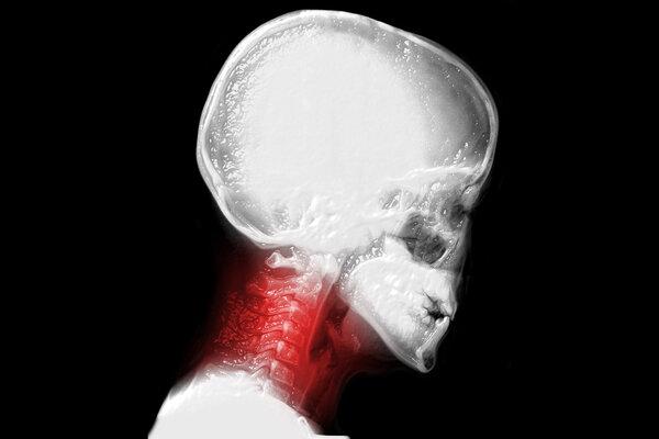 世界镇痛日丨疼痛可能是身体在求救!这些疼痛千万不要小觑