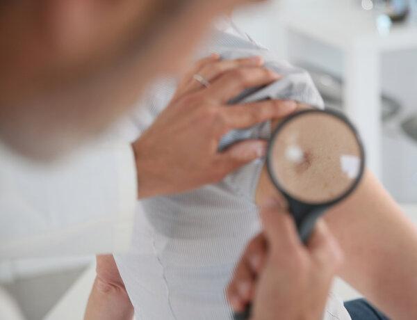 皮肌炎的症状有哪些?你需要知道
