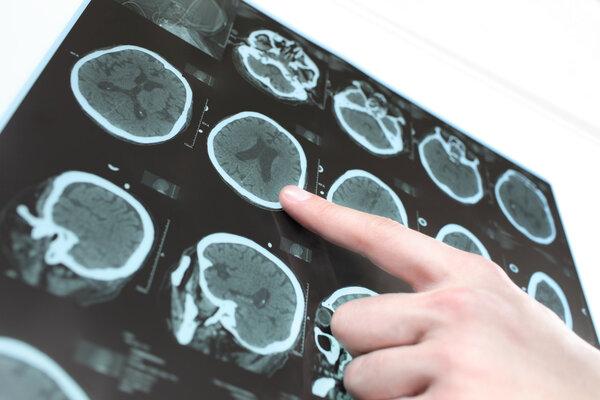癫痫为何发病?四大诱发因素,不可忽视