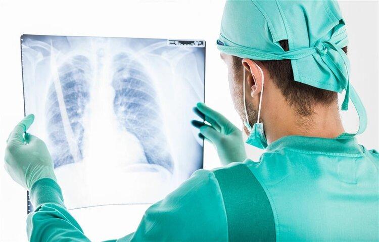 """你得肺癌是有原因的!9个""""陷阱""""随处可见,很难不掉进去"""