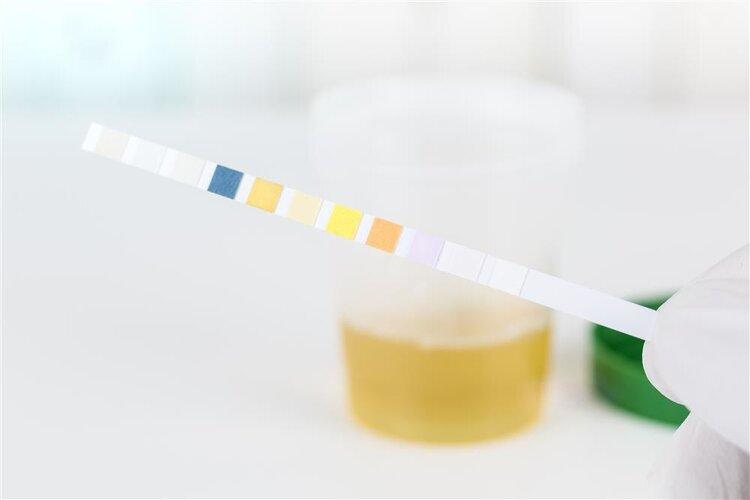 尿液的颜色呈现这几种,当心疾病来敲门
