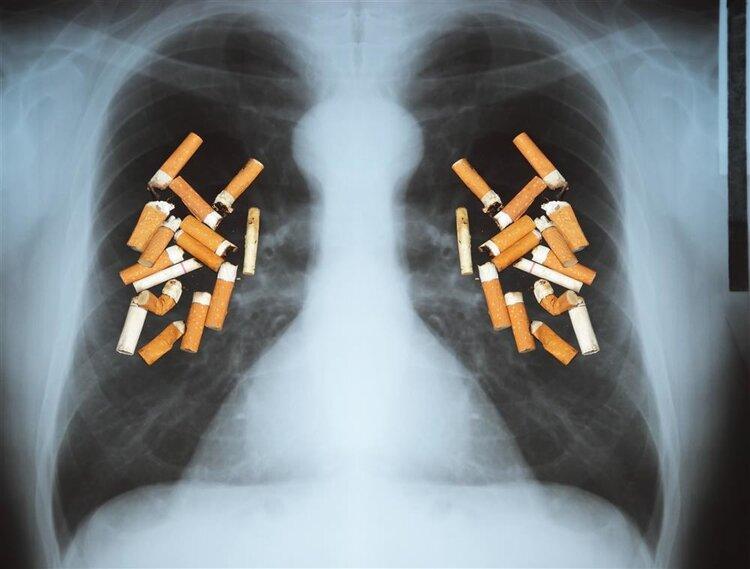 """烟民该面对的事实:一旦吸烟,你会频繁收到6个""""麻烦""""!"""