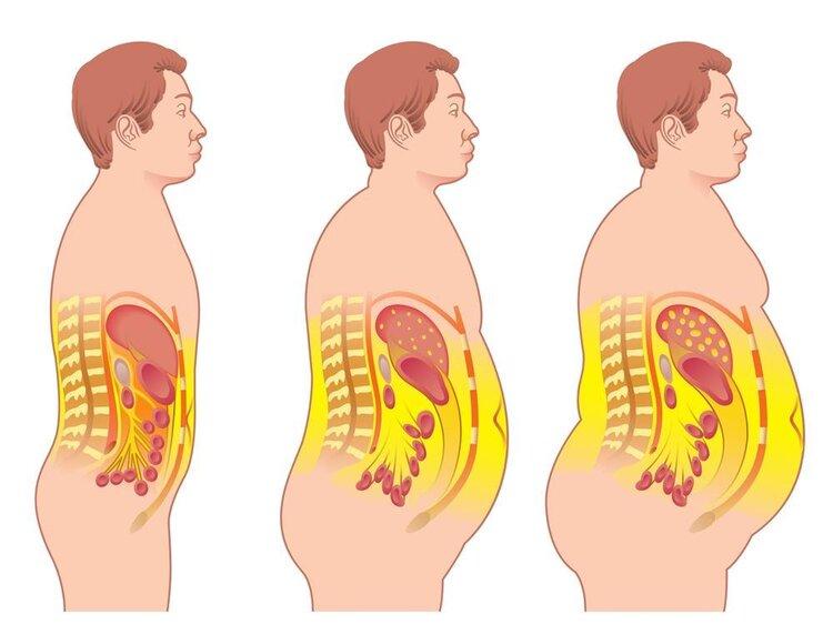 肥臀大象腿 梨型身材要怎么减肥