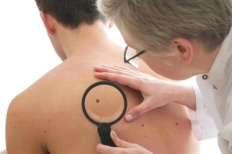 痣和皮膚癌有啥區別?這3個表現,一對照便知