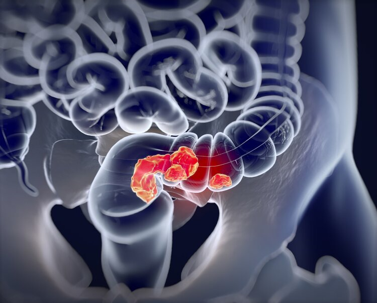 痔疮出血到确诊肠癌,仅用三个月时间,异常症状很多人都有