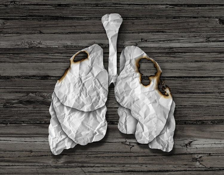 中晚期肺癌患者没得救?专家这样说