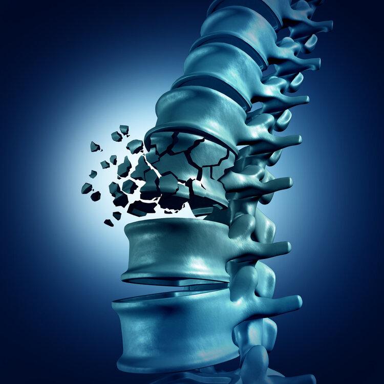 """骨质疏松是""""骨骼杀手""""!骨外科教授:一个绝招就能确诊"""