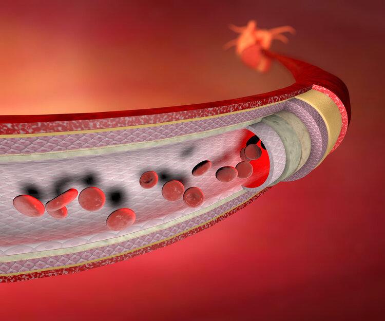 """好血管是养出来的!年轻时做3件小事,才不会给血管""""添堵"""""""