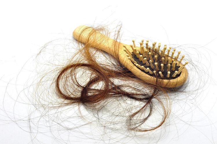 脱发就是肾虚?医生说:八成脱发是湿热!