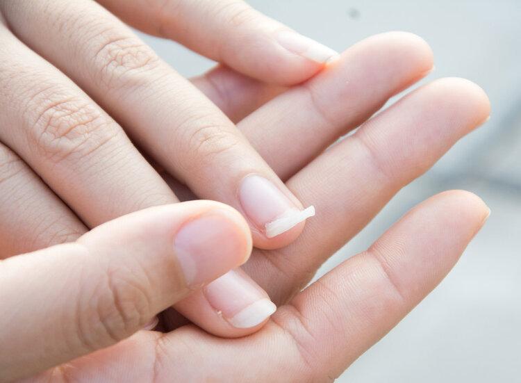 指甲没月牙,是不是代表身体差?不得不说:指甲的确反映身体问题