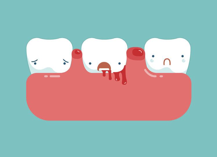 偶尔牙龈出血可还好,一直牙龈出血就不妥