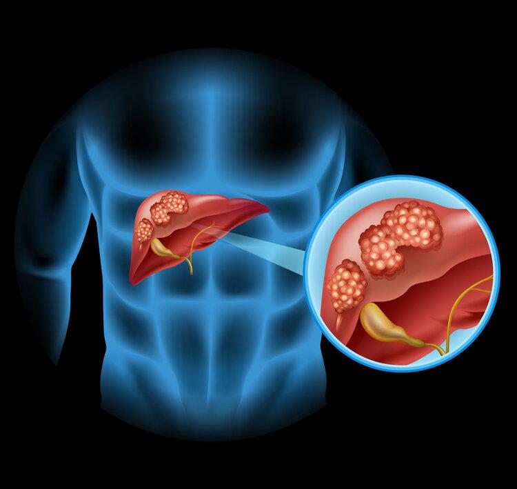 一旦身体出现7个变化,十有八九是肝硬化,最好检查一下