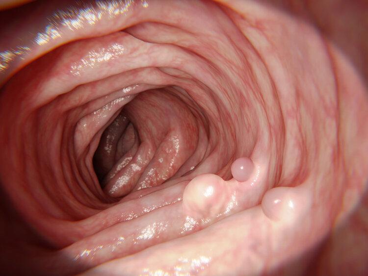 """""""清肠排毒""""是伪科学!解决肠道问题,应从这些事出发"""