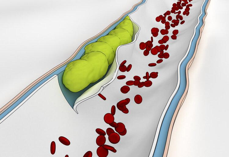 划重点:血栓的五大征兆,抓住一个你都能够保命!