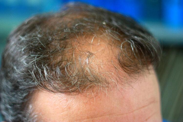 头皮按摩能防脱发?有一定作用,配合正确洗头方法效果更好