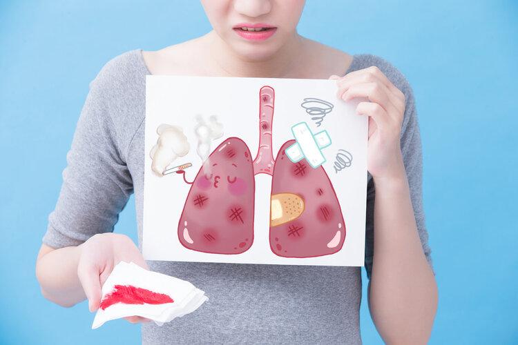 不抽烟的女性,为何得了肺癌?
