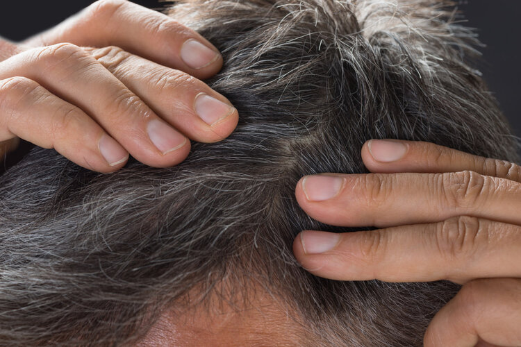 长出来的白发还可以变黑吗?如果是这些原因引起,有希望!
