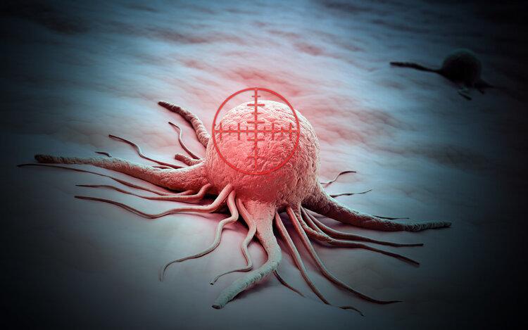 以为是胃炎,几年后竟查出胃癌!患癌前,多数人都经历过癌前病变